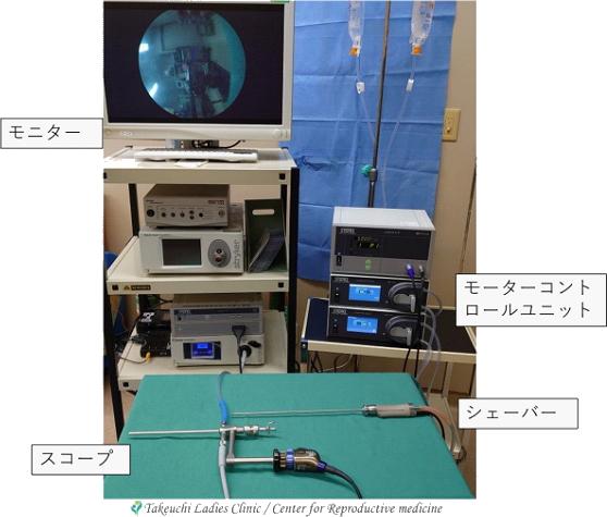 TCR(子宮鏡下手術)